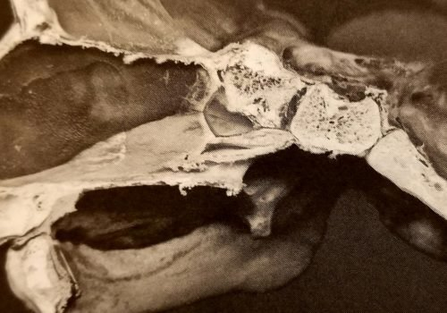 Charlotte Weaver D.O. e le tre vertebre craniali