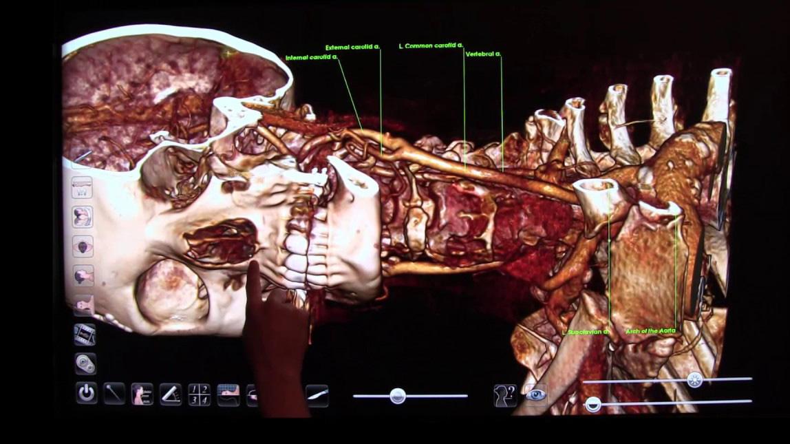 Anatomage TCIO